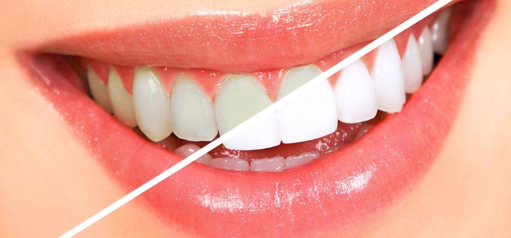 Albirea dentară, indicații și contraindicații