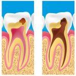 Totul despre cariile dentare